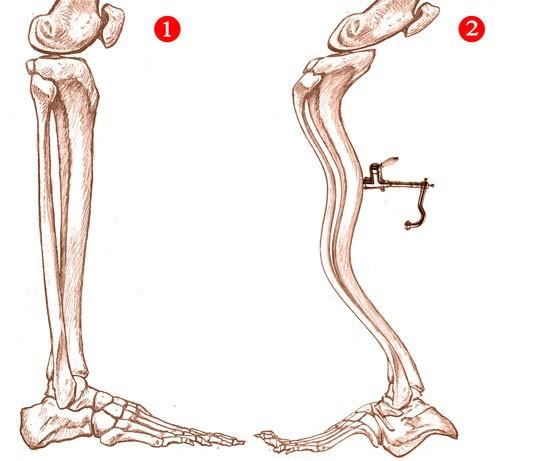 anatomia-piede.jpg